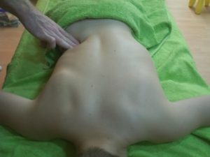Terapia Fascial